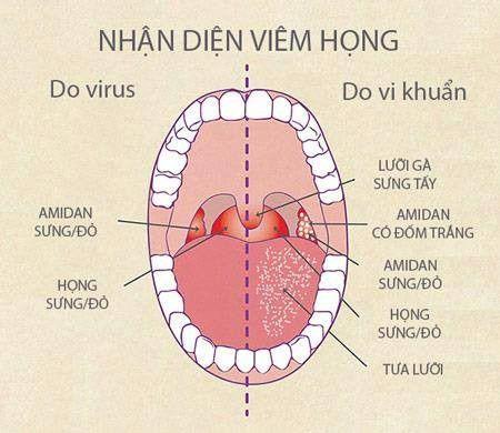 dấu hiệu nhận biết bệnh viêm họng